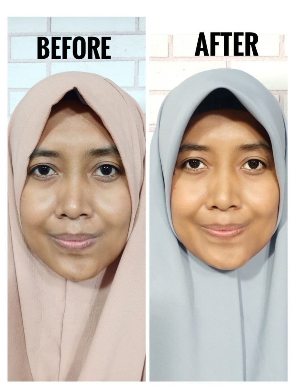 Ozora Skincare Before After